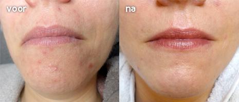 skin needling ervaringen